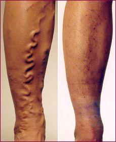Le standard du secours durgence à la thrombose des artères